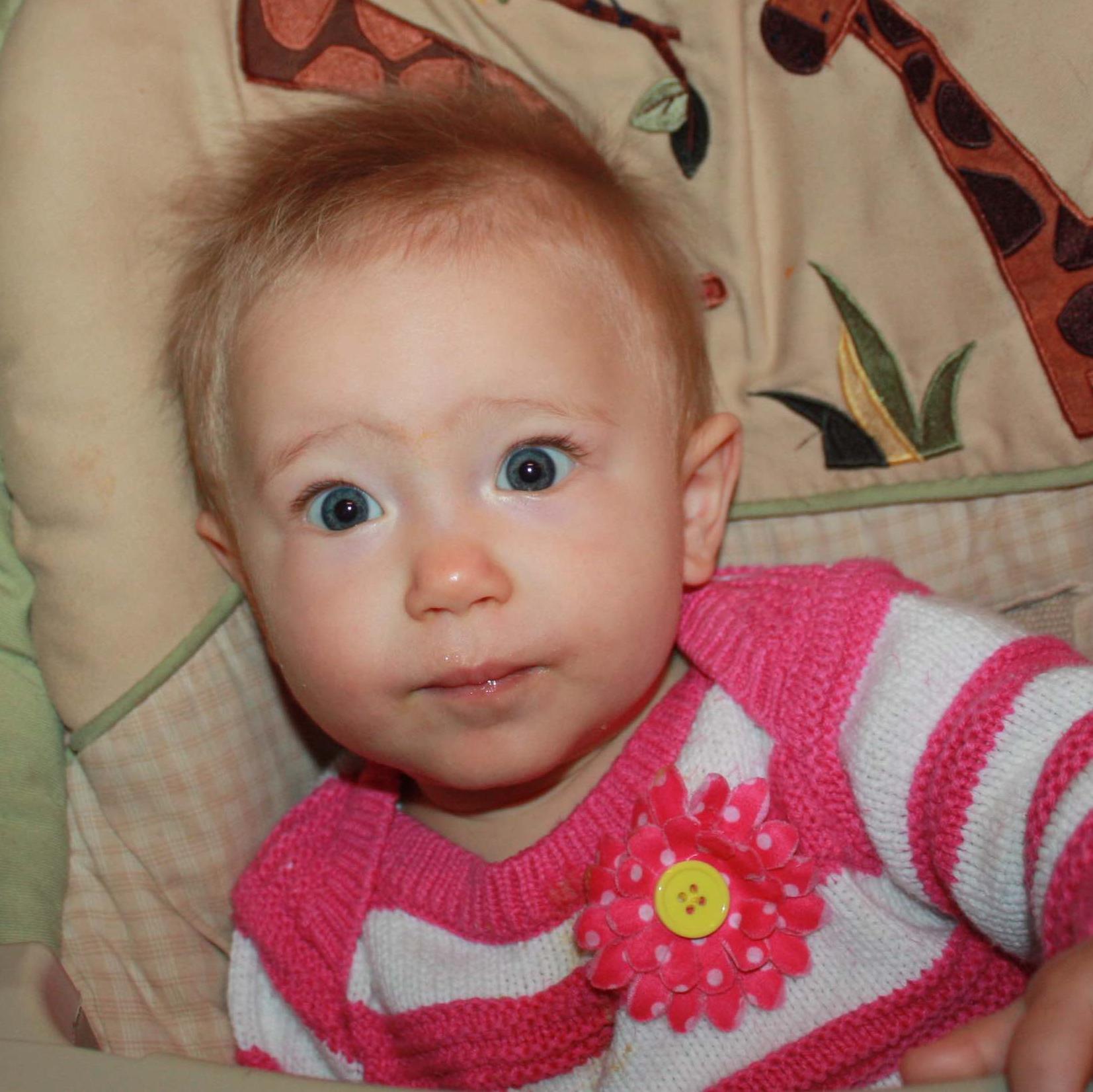Fundraising for National Alopecia Areata Foundation